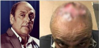 Pakistani Actor Syed Sajid Hasan Hair Transplant Goes Wrong